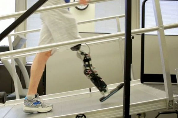 New Prosthetic Man Controls Bionic Leg with Thoughts